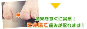 横須賀市北久里浜の鍼灸整骨院ひまわり 巻き爪矯正の写真