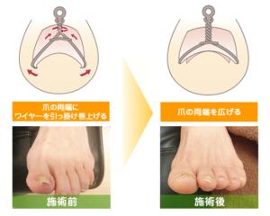 横須賀市北久里浜の鍼灸整骨院ひまわり 巻き爪矯正治療の施術写真